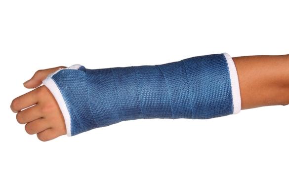 ss_18694507_broken_arm_cast